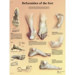 Fabrication Enterprises Anatomical Chart: Deformities of the Feet Laminated