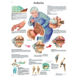 Fabrication Enterprises Anatomical Chart: Arthritis, Laminated