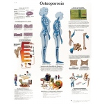 Fabrication Enterprises Anatomical Chart: Osteoporosis, Laminated