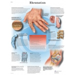 Fabrication Enterprises Anatomical Chart: Rheumatic Diseases, Laminated