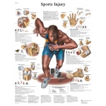 Fabrication Enterprises Anatomical Chart: Sports Injuries, Laminated