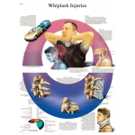 Fabrication Enterprises Anatomical Chart: Whiplash, Paper