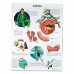 Nasco 3B Scientific Anatomical Charts, Asthma