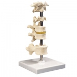 Anatomical Model - 5 mounted vertebrae with removable stand