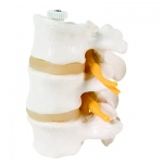Anatomical Model - 3 Lumbar Vertebrae, flexibly mounted