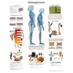 Anatomical Chart - osteoporosis, laminated