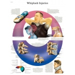 Anatomical Chart - whiplash, paper