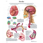 Fabrication Enterprises Anatomical Chart: Stroke Chart, Laminated