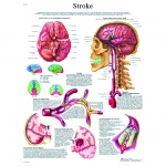 Fabrication Enterprises Anatomical Chart: Stroke Chart, Paper
